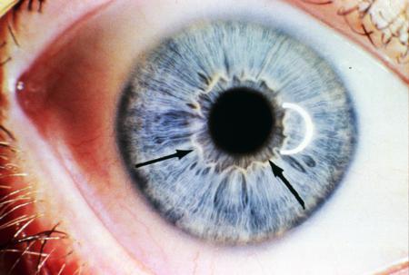 corso di iridologia a bologna immagine occhio 1