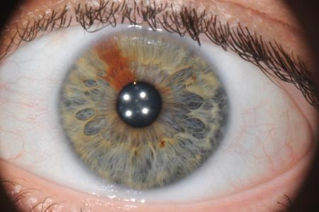 corso di iridologia a bologna immagine occhio 2
