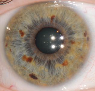 corso di iridologia a bologna immagine occhio 4
