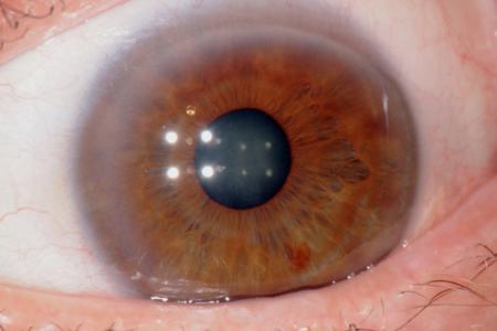 corso di iridologia a bologna immagine occhio 5