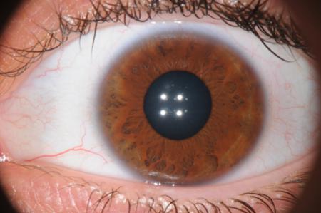 corso di iridologia a bologna immagine occhio 6