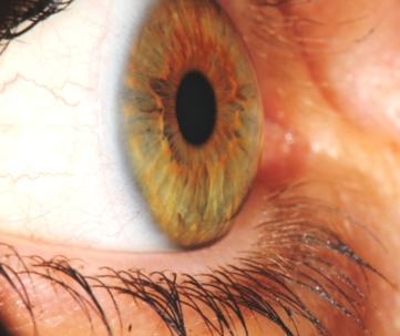 corso di iridologia a bologna immagine occhio 7